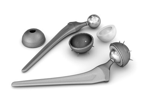 DePuy Pinnacle Hip Implant Lawyers - Your Legal Justice